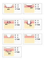【参考図アリ】ニキビ跡のクレーターの図を書いてもらいたいです。